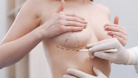 Що є основною причиною операції з підтяжки грудей?